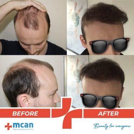 hair-transplantation-12