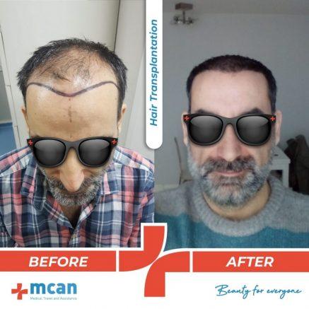 hair-transplantation-17