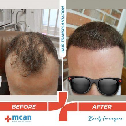 hair-transplantation-19