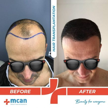 hair-transplantation-24