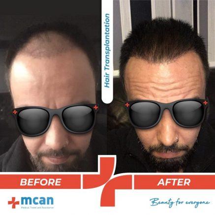 hair-transplantation-27