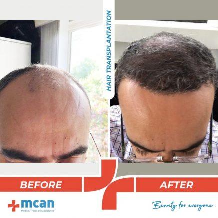 hair-transplantation-30