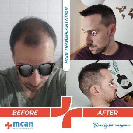 hair-transplantation-32