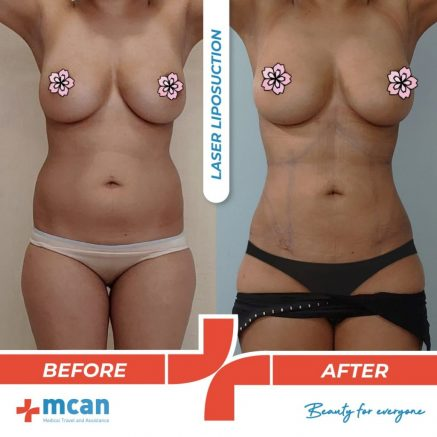 liposuction-surgery-37