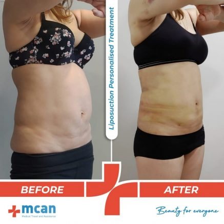 liposuction-surgery-42
