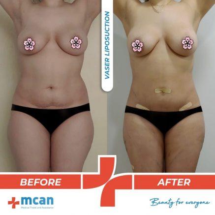 vaser-liposuction-16