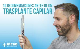 transplante capilar blog