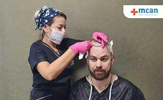 Solución para la alopecia en Turquía