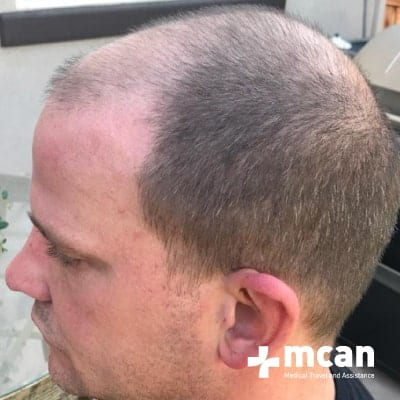 hair-transplant-before-after-photo-1-13-09-19