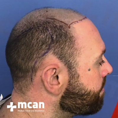 hair-transplant-before-after-photo-3-13-09-19