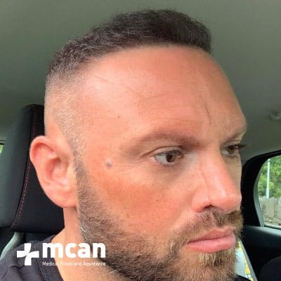 hair-transplant-before-after-photo-4-13-09-19