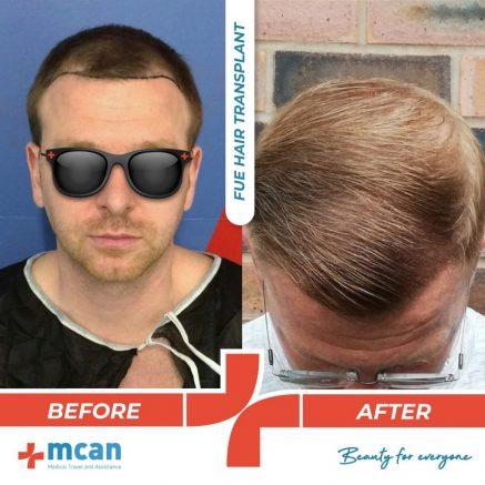 hair-transplantation-37