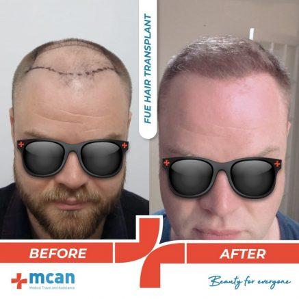 hair-transplantation-38