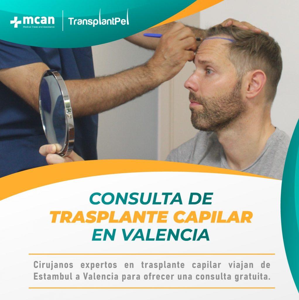 Trasplante Capilar en Valencia