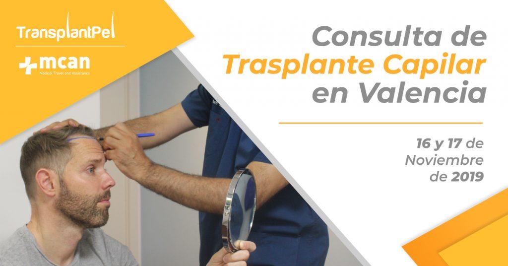 Consulta Trasplante Capilar en Valencia