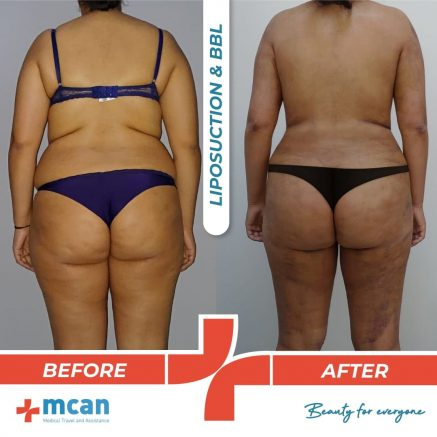 bbl-liposuction-07