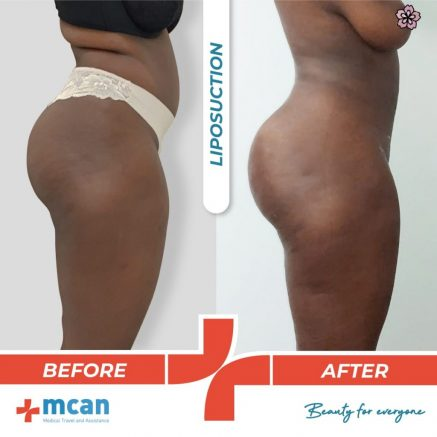 liposuction-surgery-01