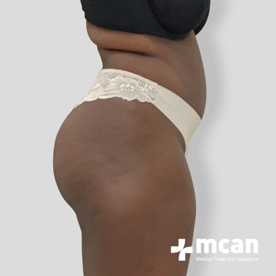 liposuction-surgery-treatment-mcan-1-1