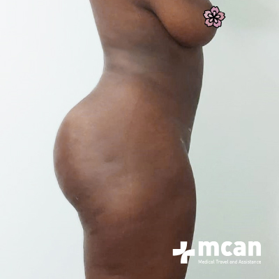 liposuction-surgery-treatment-mcan-1-2