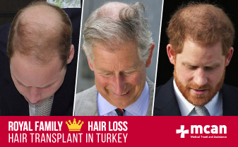 royal-family-hair-transplant