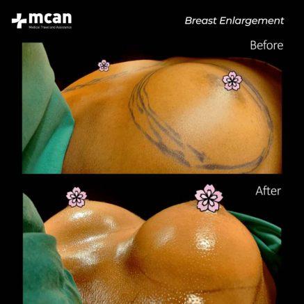 15.01.2020-Breast-enl