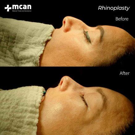 15.01.2020-rhinoplasty