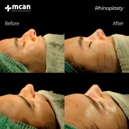 20.01.2020-rhinoplasty