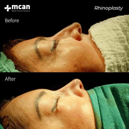 27.01.2020-rhinoplasty