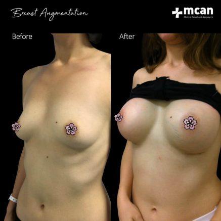 breast-augmentation-16.12.2019