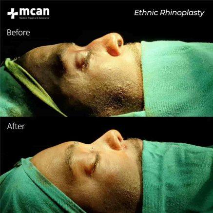 ethnic-rhinoplasty