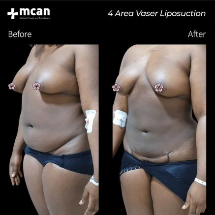 mary-adeyemoo-before-after-27.01.2020