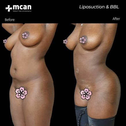 09.03.2020-liposuction-bbl
