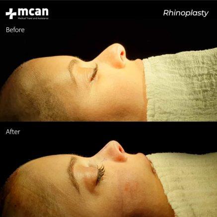15.04.2020-rhinoplasty