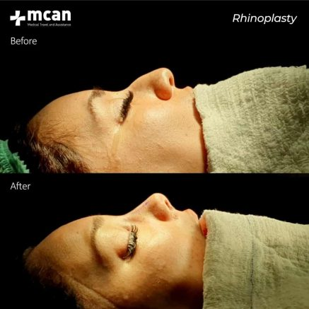 21.03.2020-rhinoplasty
