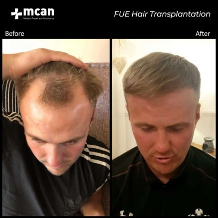 hair-transplantation-31