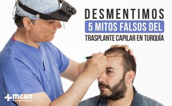mitos falsos del trasplante capilar