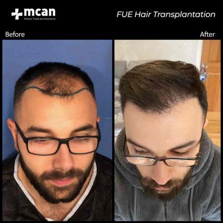 hair-transplantation-33