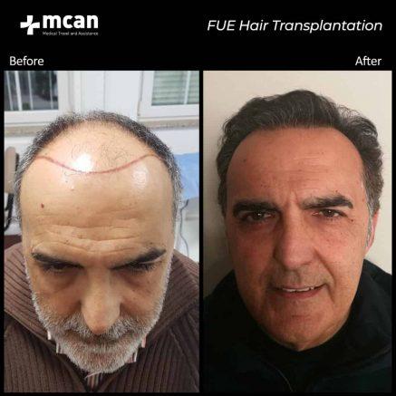 hair-transplantation-34