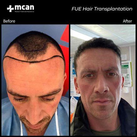 hair-transplantation-35