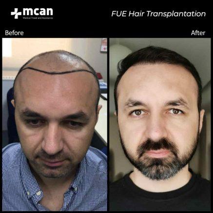 hair-transplantation-36