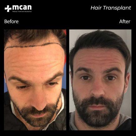 hair-transplantation-50