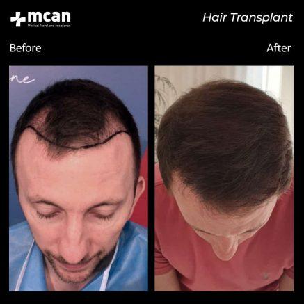 hair-transplantation-51