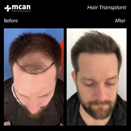 hair-transplantation-52