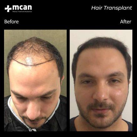 hair-transplantation-53
