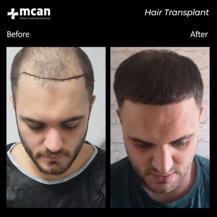 hair-transplantation-54