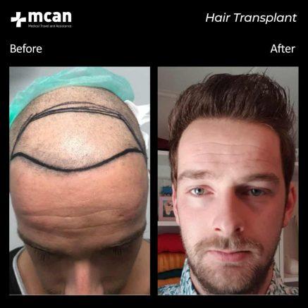 hair-transplantation-55