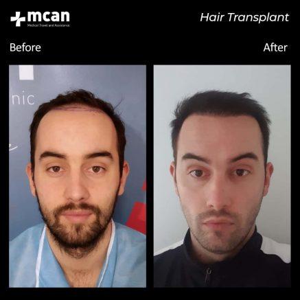hair-transplantation-57