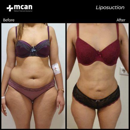 liposuction-06.04.20