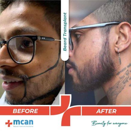 beard-transplant-12.05.20