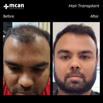 hair-transplantation-100